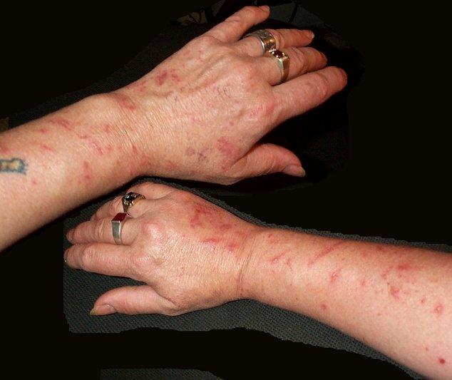 Wild Parsnip Avoid This Dangerous Invasive Species